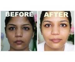 Glutathione Skin lightening injection and pill +27733001589