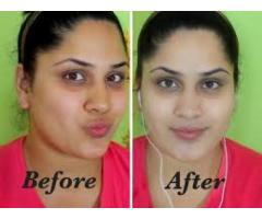 Bleaching Skin products that works effectively+27710566061 in Johannesburg, Durban, Pretoria